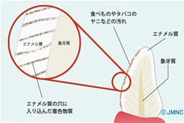 blog_led_03